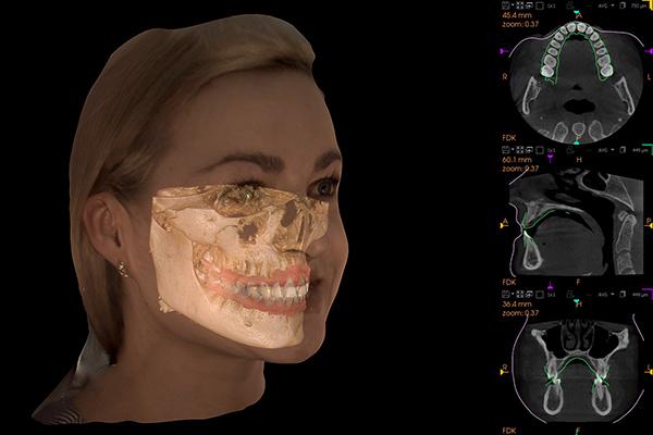 7_cs-face-scan_16x17-volumeimpression