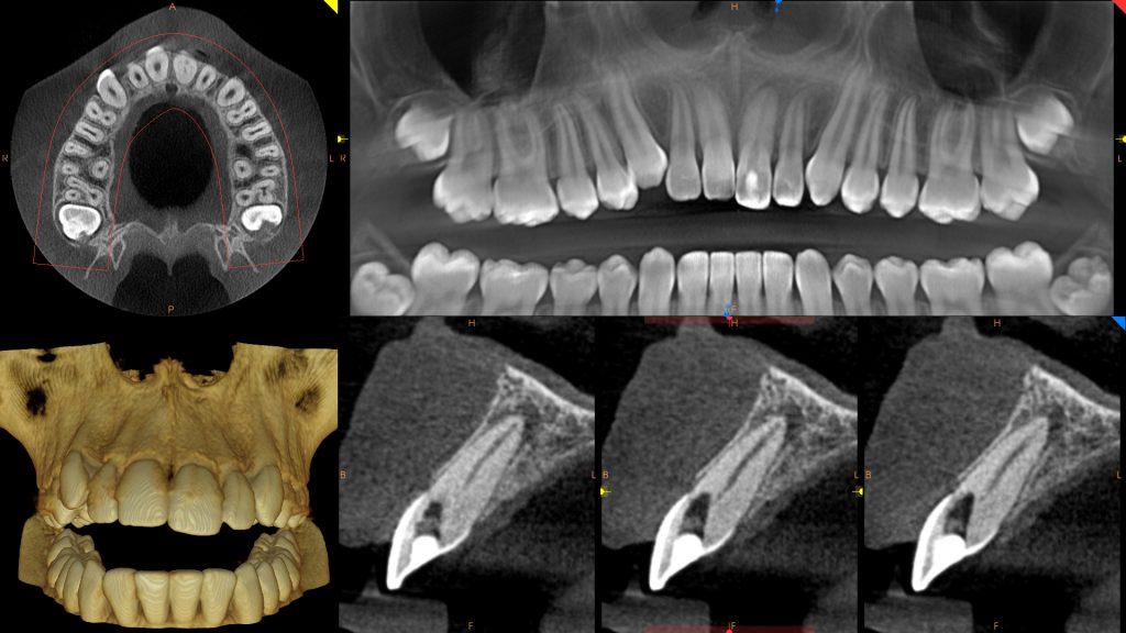 8x5_periodontisis_3_hires