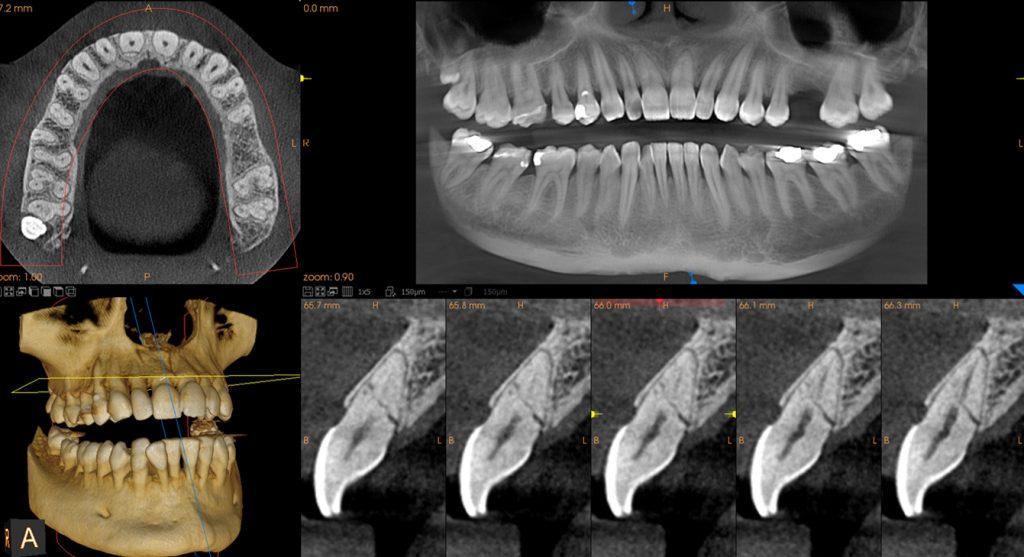 8x9_incisor_fracture_sftw